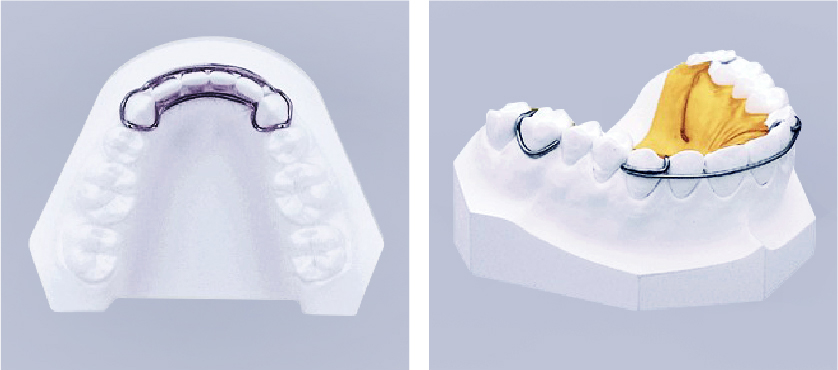 人間の歯は年齢とともに自然に動きうるものです。歯周病になったり、虫歯になって歯が抜けたりして動くこともあります。