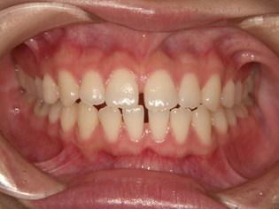上下のすきっ歯治療前