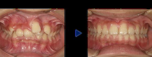 歯茎から歯が生えている症例