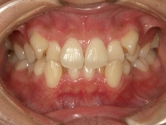 八重歯でガタガタの症例