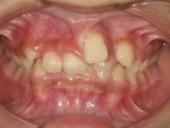 歯茎から歯が生えている
