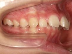 隙間がある出っ歯治療前
