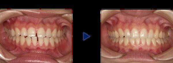 上下のすきっ歯治療前後