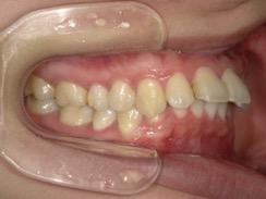前歯2本がでている出っ歯