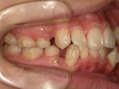 上下のガタガタと八重歯