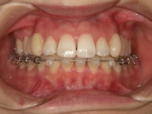 上顎のみ舌側矯正