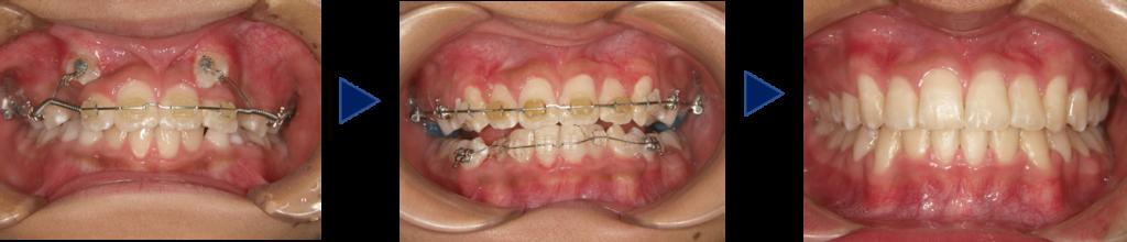 埋伏歯治療経過
